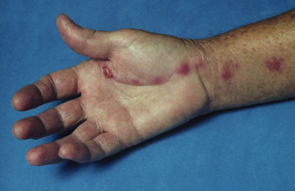 7: Soft tissue, bone and joint infections   The Medical