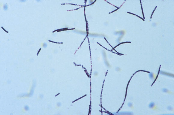 plague bacillus yersinia pestis essay I am going to talk about the black death affected by the black death plague victims are notorious for group of bacteria that yersinia pestis.