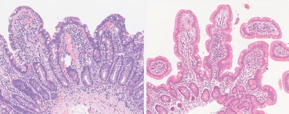 Cyclospora infection m...