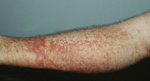 A syndromic rash in patients attending methadone clinics in