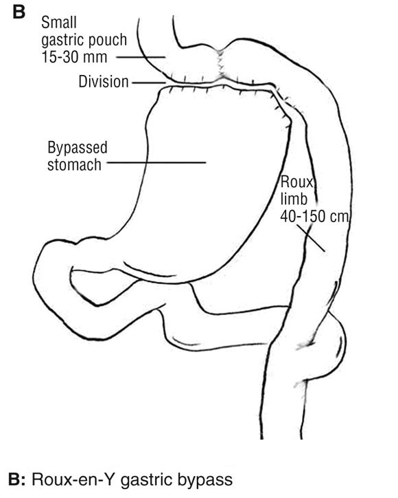 Obesity Weight Loss And Bariatric Surgery The Medical Journal Of