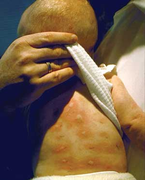 patch test food allergies