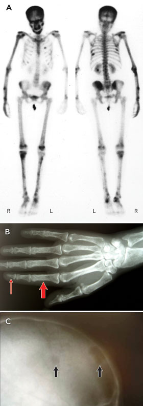 Osteitis Fibrosa Cystica; Recklinghausen's Disease of Bone