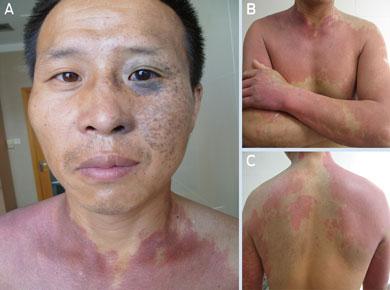 phakomatosis pigmentovascularis #10