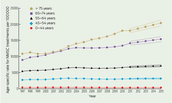Non Melanoma Skin Cancer In Australia The Medical Journal Of Australia