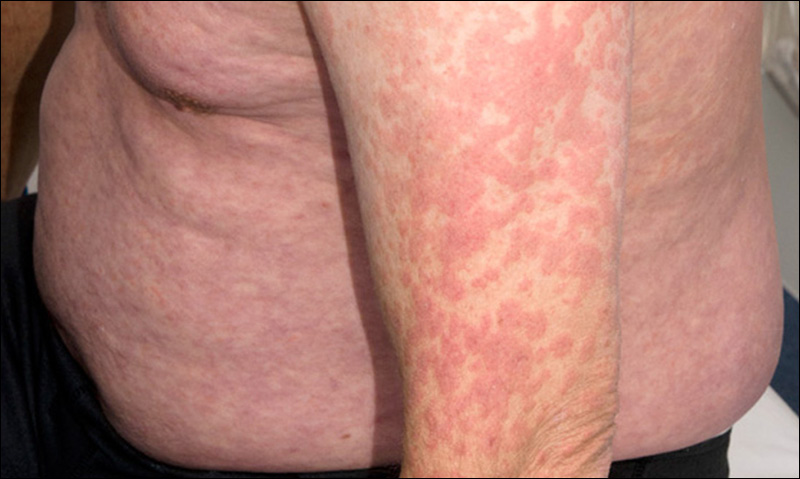 Acute HIV infection presenting as erythema multiforme in a