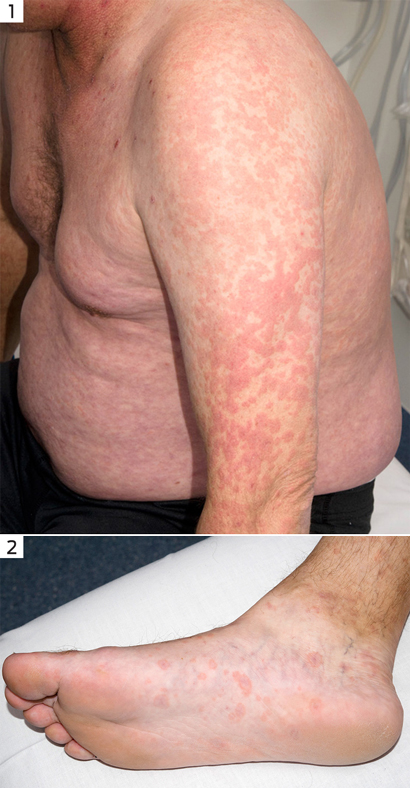 Acute HIV infection presenting as erythema multiforme in a ...
