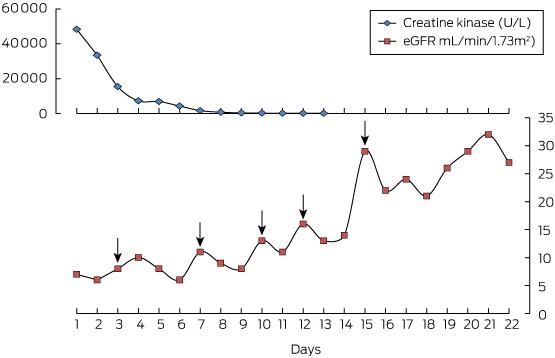 Febuxostat Associated Rhabdomyolysis In Chronic Renal