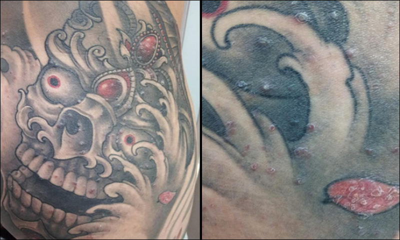 NWTs chief public health officer issues tattoo warning