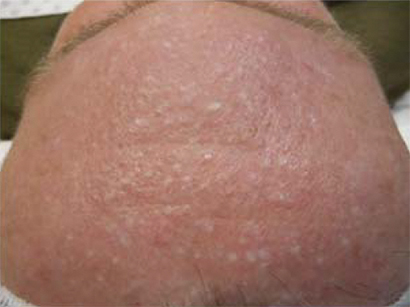 Not just a cosmetic problem: facial papules in Birt-Hogg ...   410 x 307 jpeg 85kB