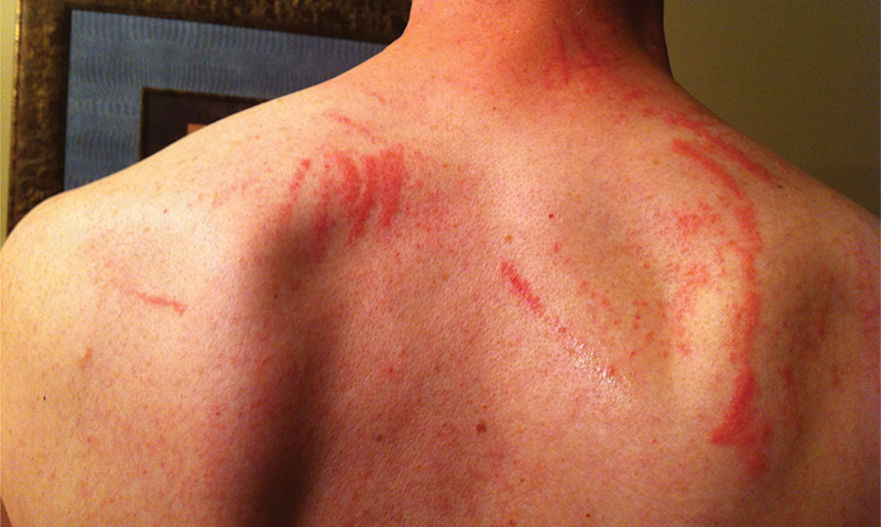 Shiitake dermatitis: the tale of an under-recognised