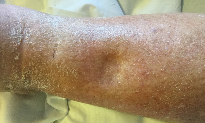 Pitting and non-pitting oedema | The Medical Journal of