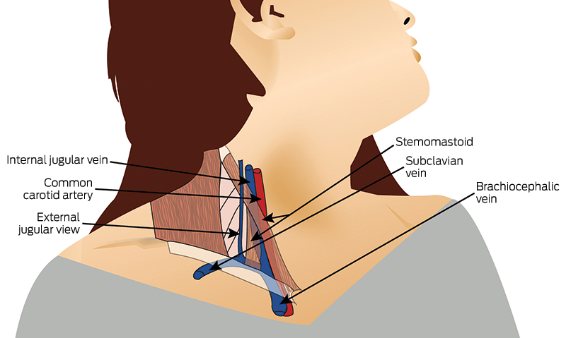 jugular vein pressure - 800×479