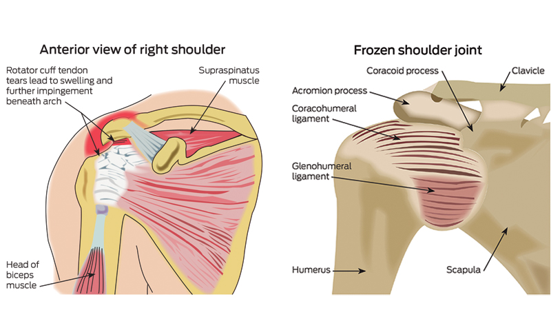 Examination Of The Shoulder Joint The Medical Journal Of Australia