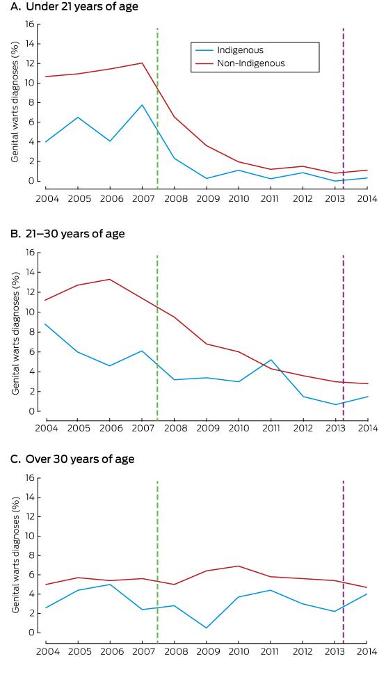 Human papillomavirus vaccination and genital warts in young