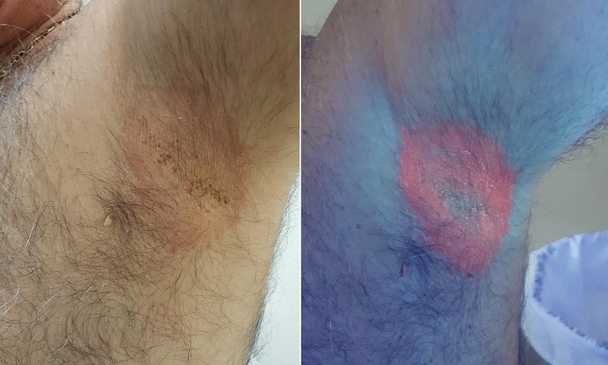 Corynebacterium Minutissimum Infection  Erythrasma