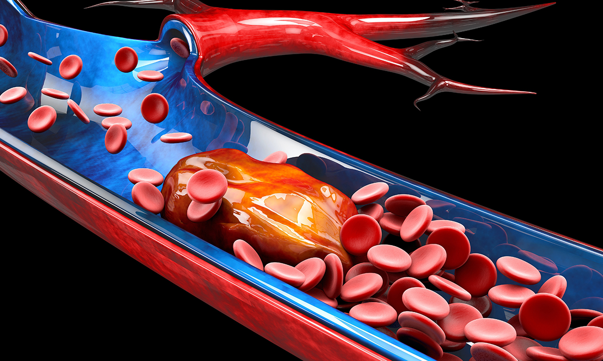 New guidelines from the Thrombosis and Haemostasis Society ...