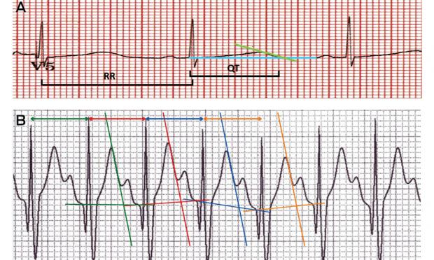 How to measure a QT interval
