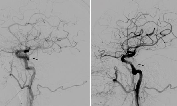 A rare red eye: cavernous sinus dural arteriovenous fistula masquerading as conjunctivitis and sinusitis